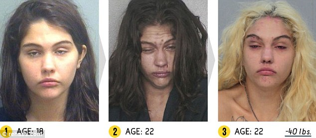 CLUB GIGGLE article-0-1C92543D00000578-845_634x278 17 Shocking pictures of addicts  before and after images show the cost of drug addiction