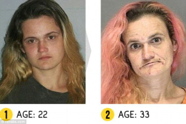 CLUB GIGGLE article-0-1C9273AA00000578-841_634x425 17 Shocking pictures of addicts  before and after images show the cost of drug addiction