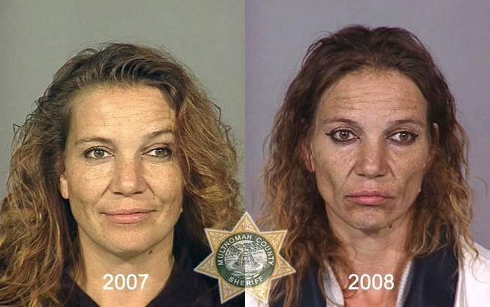 CLUB GIGGLE drug_abusers_09 17 Shocking pictures of addicts  before and after images show the cost of drug addiction