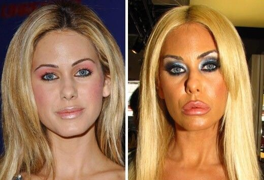 CLUB GIGGLE 144f2afa947dd1faf519efa12aed43bf 30 Celebrity Plastic Surgery Disasters Before and After Pictures...