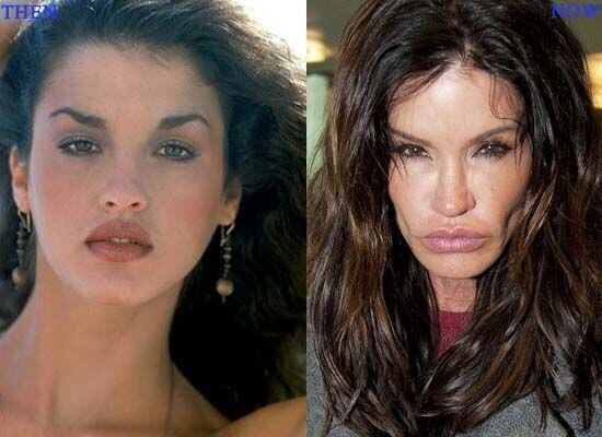 CLUB GIGGLE 6bbfa96ff75d3722b49fe0e10cf1d564 30 Celebrity Plastic Surgery Disasters Before and After Pictures...