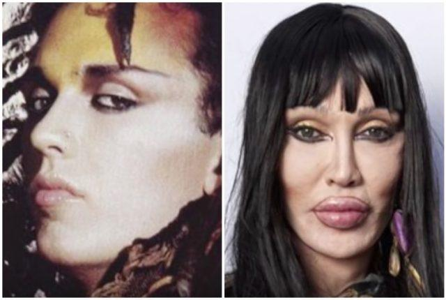 CLUB GIGGLE Pete-Burns-640x430 30 Celebrity Plastic Surgery Disasters Before and After Pictures...