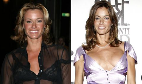 CLUB GIGGLE botch-plastic-surgeries-kelly-bensimon-lifestyle-1 30 Celebrity Plastic Surgery Disasters Before and After Pictures...