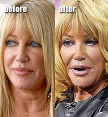 CLUB GIGGLE download-1 30 Celebrity Plastic Surgery Disasters Before and After Pictures...