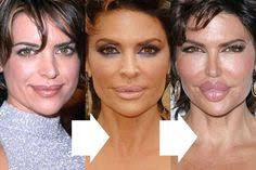 CLUB GIGGLE download-3 30 Celebrity Plastic Surgery Disasters Before and After Pictures...