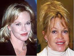 CLUB GIGGLE download-5 30 Celebrity Plastic Surgery Disasters Before and After Pictures...