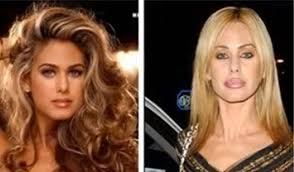 CLUB GIGGLE download-6 30 Celebrity Plastic Surgery Disasters Before and After Pictures...