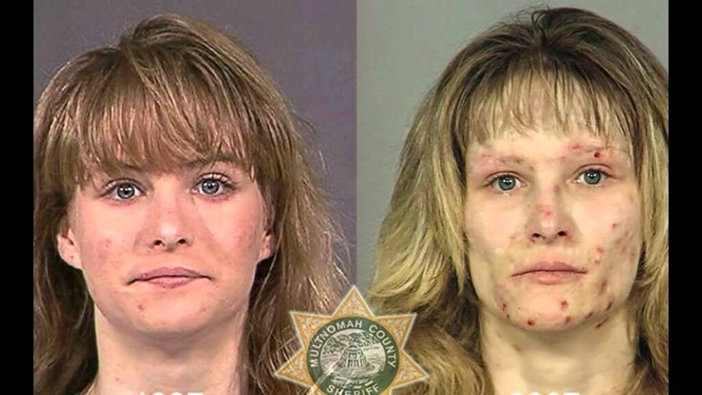 CLUB GIGGLE drug-addict 16 Shocking before and after mugshots show the cost of drug addiction