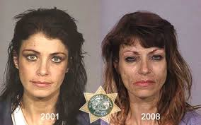 CLUB GIGGLE drug-addict11 16 Shocking before and after mugshots show the cost of drug addiction