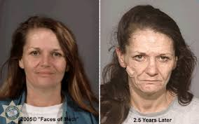 CLUB GIGGLE drug-addict12 16 Shocking before and after mugshots show the cost of drug addiction