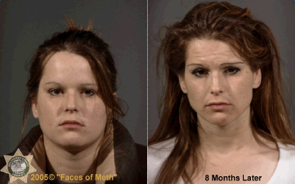 CLUB GIGGLE drug-addict14 16 Shocking before and after mugshots show the cost of drug addiction