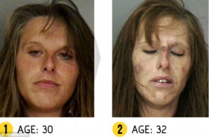 CLUB GIGGLE drug-addict4 16 Shocking before and after mugshots show the cost of drug addiction