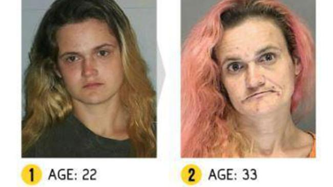 CLUB GIGGLE drug-addict5 16 Shocking before and after mugshots show the cost of drug addiction