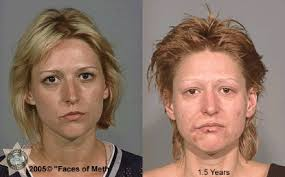 CLUB GIGGLE drug-addict9 16 Shocking before and after mugshots show the cost of drug addiction