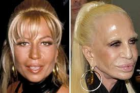 CLUB GIGGLE images-1-1 30 Celebrity Plastic Surgery Disasters Before and After Pictures...
