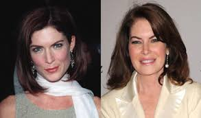 CLUB GIGGLE images-10 30 Celebrity Plastic Surgery Disasters Before and After Pictures...