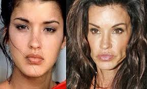 CLUB GIGGLE images-13 30 Celebrity Plastic Surgery Disasters Before and After Pictures...