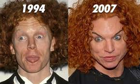 CLUB GIGGLE images-14 30 Celebrity Plastic Surgery Disasters Before and After Pictures...