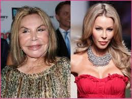 CLUB GIGGLE images-15 30 Celebrity Plastic Surgery Disasters Before and After Pictures...