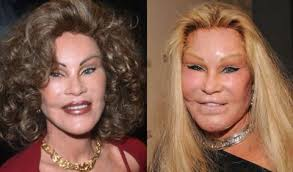 CLUB GIGGLE images-2-1 30 Celebrity Plastic Surgery Disasters Before and After Pictures...