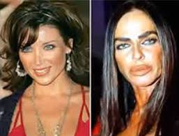 CLUB GIGGLE images-3 30 Celebrity Plastic Surgery Disasters Before and After Pictures...