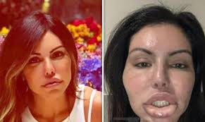 CLUB GIGGLE images-4 30 Celebrity Plastic Surgery Disasters Before and After Pictures...