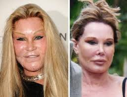 CLUB GIGGLE images-5 30 Celebrity Plastic Surgery Disasters Before and After Pictures...