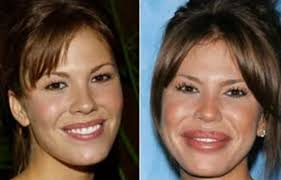 CLUB GIGGLE images-6 30 Celebrity Plastic Surgery Disasters Before and After Pictures...