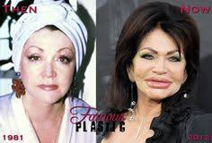 CLUB GIGGLE images-7 30 Celebrity Plastic Surgery Disasters Before and After Pictures...