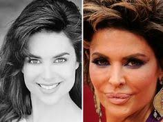 CLUB GIGGLE images-9 30 Celebrity Plastic Surgery Disasters Before and After Pictures...