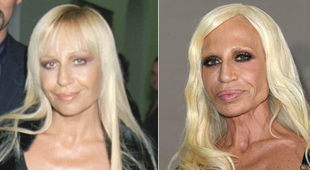CLUB GIGGLE 00 When Weekend Plastic Surgery Goes Horribly Wrong...20 pics