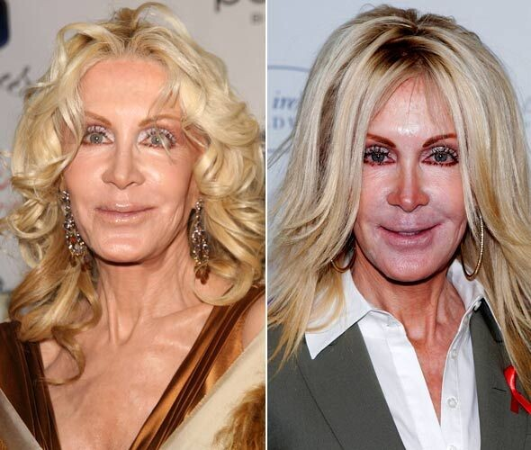 CLUB GIGGLE 4-1 When Weekend Plastic Surgery Goes Horribly Wrong...20 pics