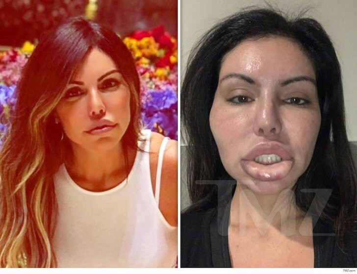CLUB GIGGLE 89b561aac0aa55fb8a3541b258083bec_md When Botox And Lip Fillers go Wrong ... 20 pics