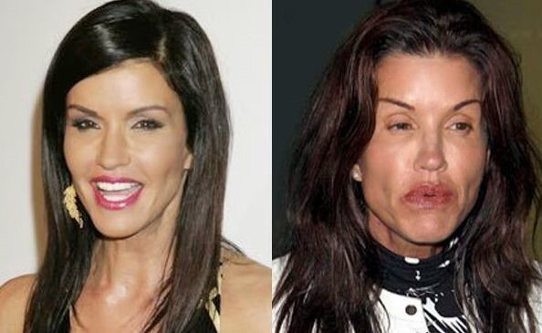CLUB GIGGLE Janice-Dickinson-before-and-after-plastic-surgery-06 When Weekend Plastic Surgery Goes Horribly Wrong...20 pics