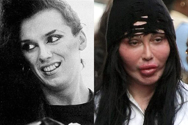 CLUB GIGGLE Pete-Burns-Before-And-After-Plastic-Surgery When Weekend Plastic Surgery Goes Horribly Wrong...20 pics