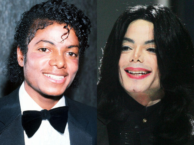 CLUB GIGGLE michaeljackson-beforeafter When Weekend Plastic Surgery Goes Horribly Wrong...20 pics