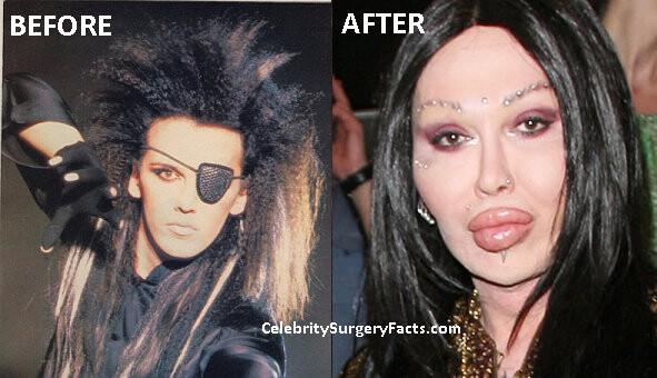 CLUB GIGGLE pete-burns-before-and-after When Weekend Plastic Surgery Goes Horribly Wrong...20 pics